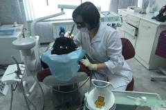 лазерное-отбеливание-зубов-2