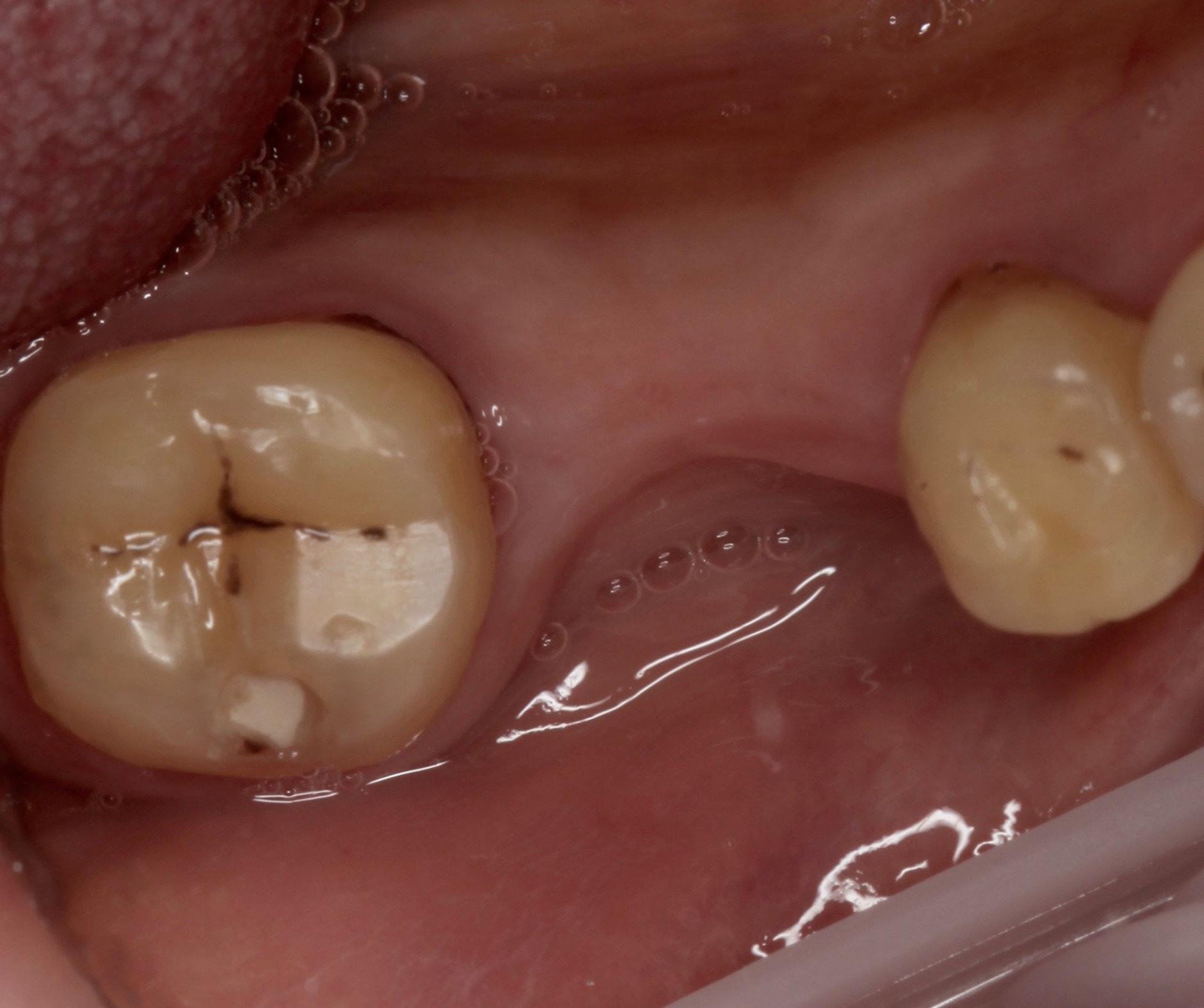 Зубы до протезирования