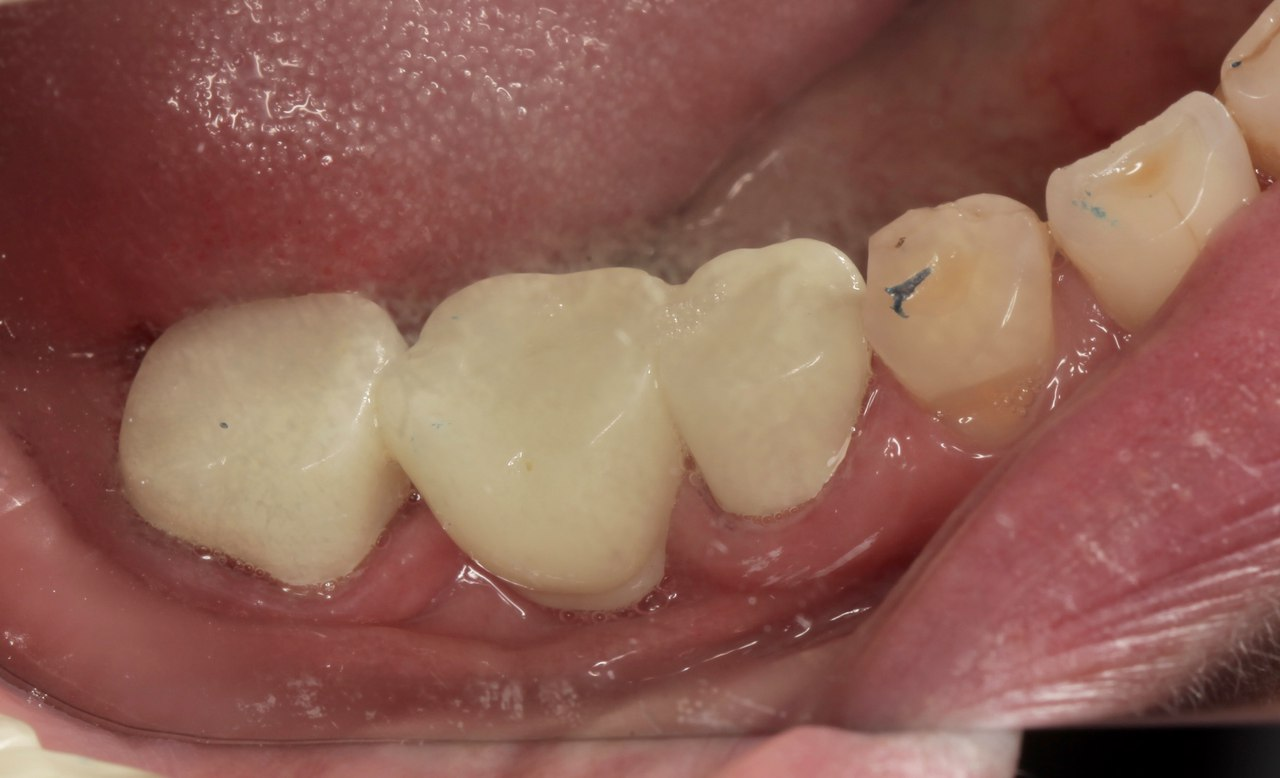 Зубы после установки готового моста