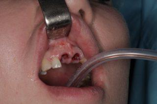 Установка зубных имплантов - 1