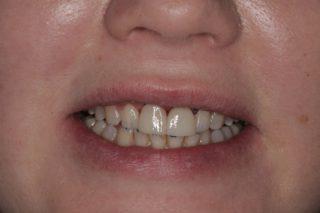 Установка зубных имплантов - 10