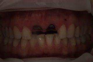 Установка зубных имплантов - 2