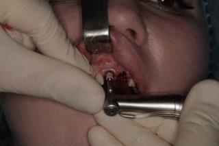Установка зубных имплантов - 5