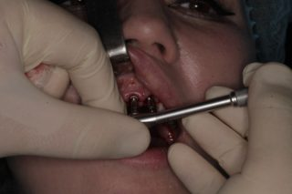 Установка зубных имплантов - 9