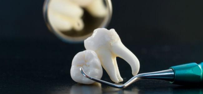 -зуба-мин.jpg