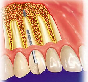 Комбинированные зубные импланты