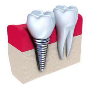 Корневидные зубные импланты