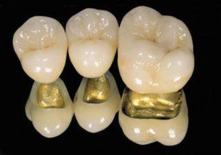 Виды зубных коронок: металлопластмасса