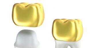 виды зубных коронок: металлические коронки