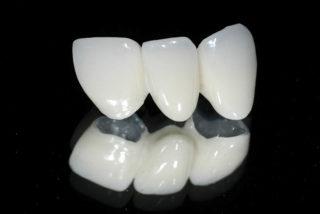 Виды зубных коронок: безметалловые коронки