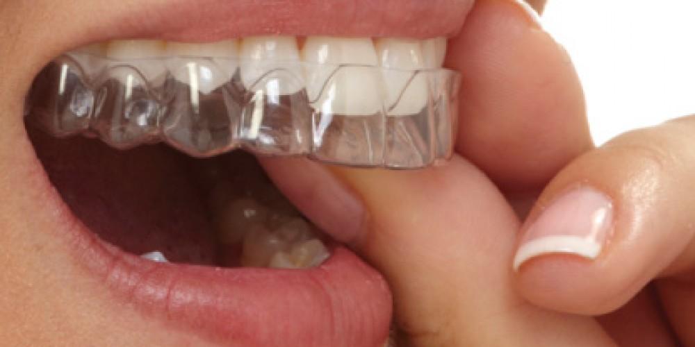 элайнеры-Стайл-С-стоматология