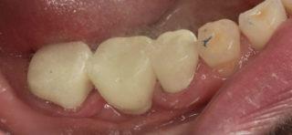 Zubnoj most bystro stomatologiya