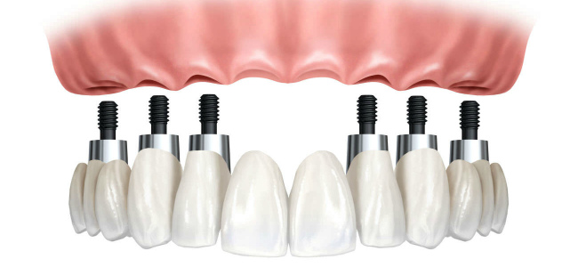 Polnaya implantaciya zubov