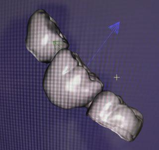 3D модель зубного моста клиника Стайл-С