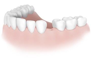 21.otsutstvie-1-zuba.jpg