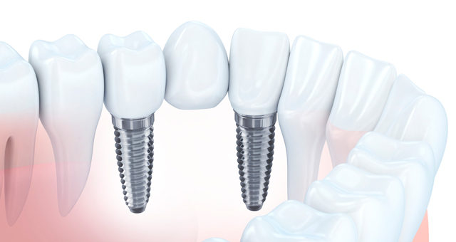 Implant-e1571129645184.jpg