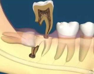 Сложное удаление зуба мудрости
