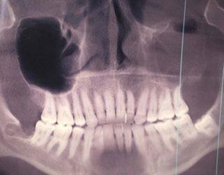 Рентгенография зуба мудрости